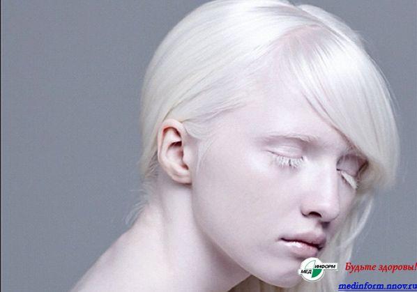 можно ли стать альбиносом стримах