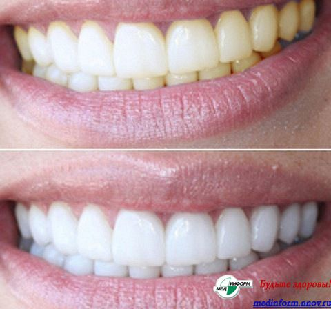 Капа для отбеливания зубов pearlsmile