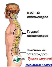 Схема остеохондроза.