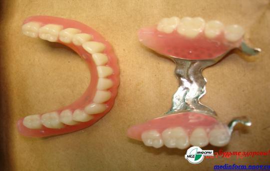 Какие протезы поставить при частичном отсутствии зубов